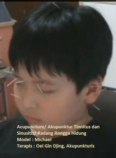 Menderita Tinnitus dan Sinusitis, Michael usia 9 tahun.