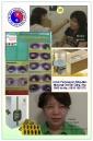 Senam mata dan akupunktur