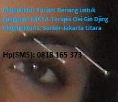 Akupunktur Mata oleh Oei Gin Djing, SMS: 0818 165 373 (Sunter-Jakarta)