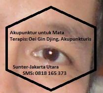 Akupunktur Tanam Benang untuk Mata oleh Oei Gin Djing, Akupunkturis (Sunter-Jakarta), SMS: 0818 165 373