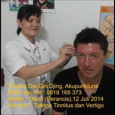Terapis Akupunktur Tinnitus ibu Oei Gin Djing, Akupunkturis.. Untuk informasi hubungi ibu Oei Gin Djing, Akupunkturis via SMS atau WA; 0818 165 373 Harga per-pak isi 25 keping Rp 200 ribu belum termasuk ongkos kirim