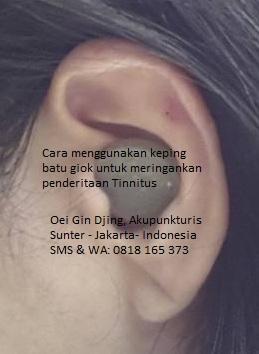 Untuk pemesanan hubungi ibu Oei Gin Djing, Akupunkturis via SMS atau WA; 0818 165 373 Harga per-pak isi 25 keping Rp 200 ribu belum termasuk ongkos kirim