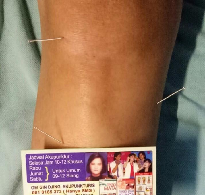 Akupunktur Lutut oleh Oei Gin Djing, Akupunkturis